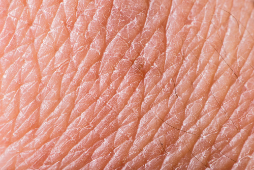 Study Shows Treatment with Fresolimumab Able to Reduce Skin Scarring in SSc patients