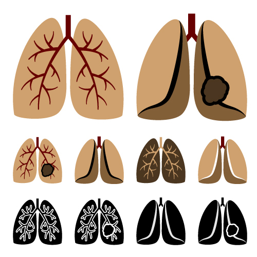 Lung Transplantation Poses Higher Risk for Systemic Sclerosis Patients