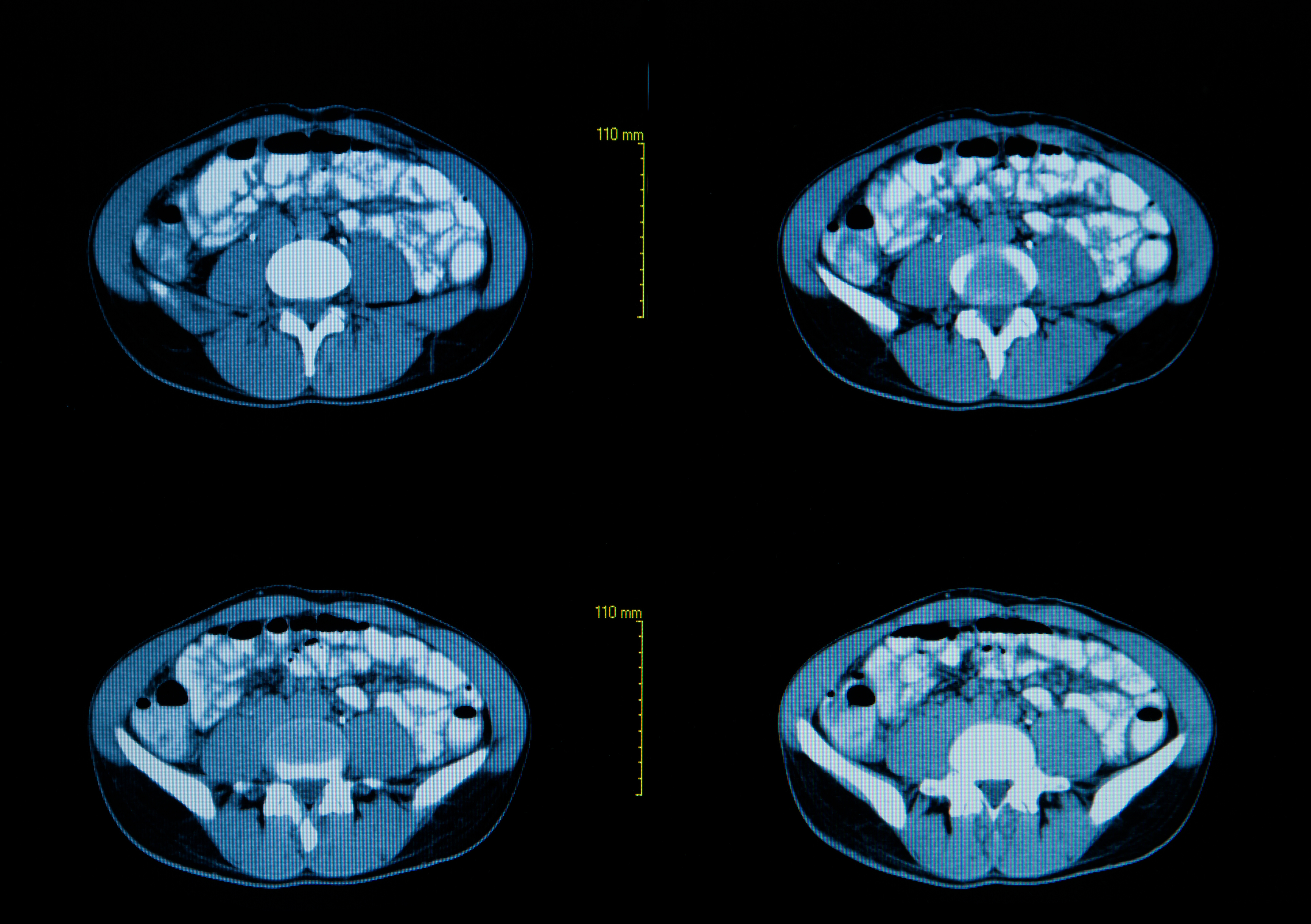 Study Suggests High-Resolution Computed Tomography as a Predictor of Lung Function in Systemic Sclerosis Patients