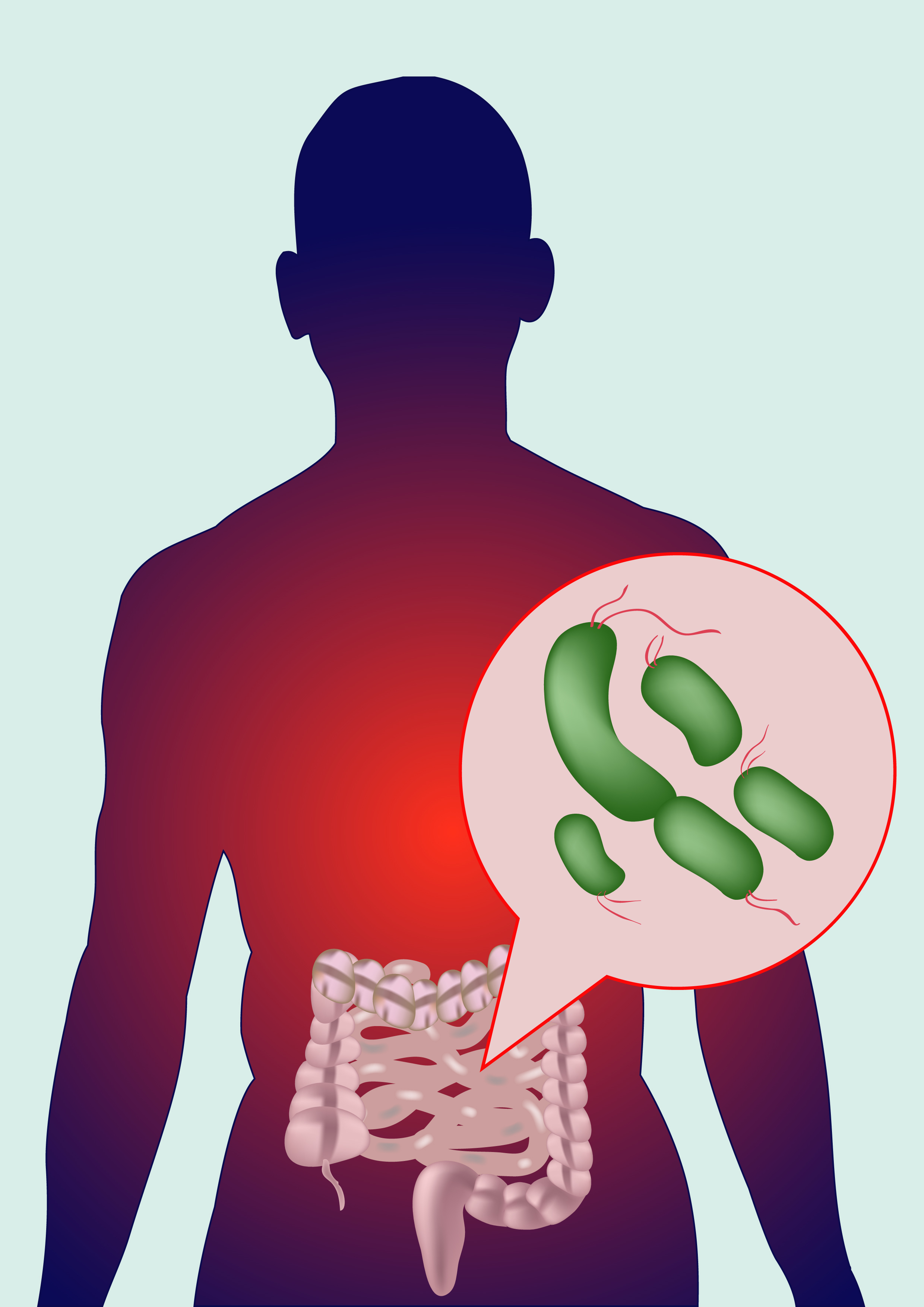Systemic Sclerosis Patients' Intestinal Microbiome Found To Be Enriched by Inflammatory Bacteria