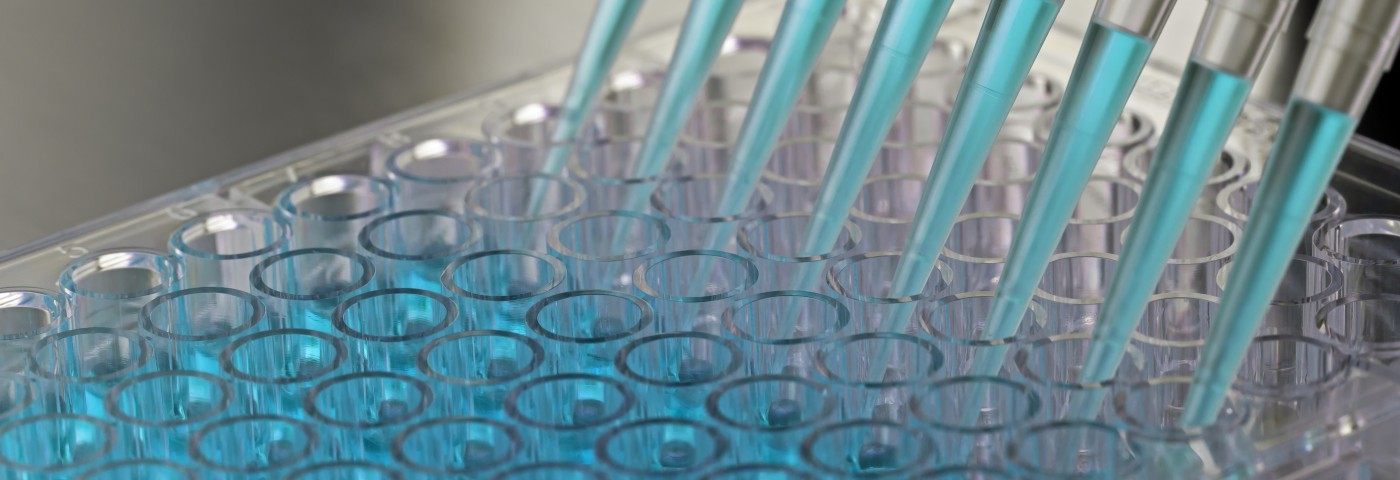 New Biomarker Assay to Aid in Systemic Sclerosis Diagnosis