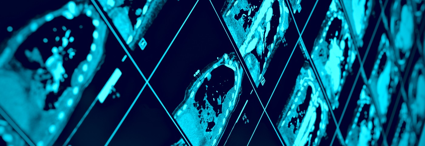 In SSc Study, Pulmonary Fibrosis and Hypertension Linked to Right Ventricular Dysfunction