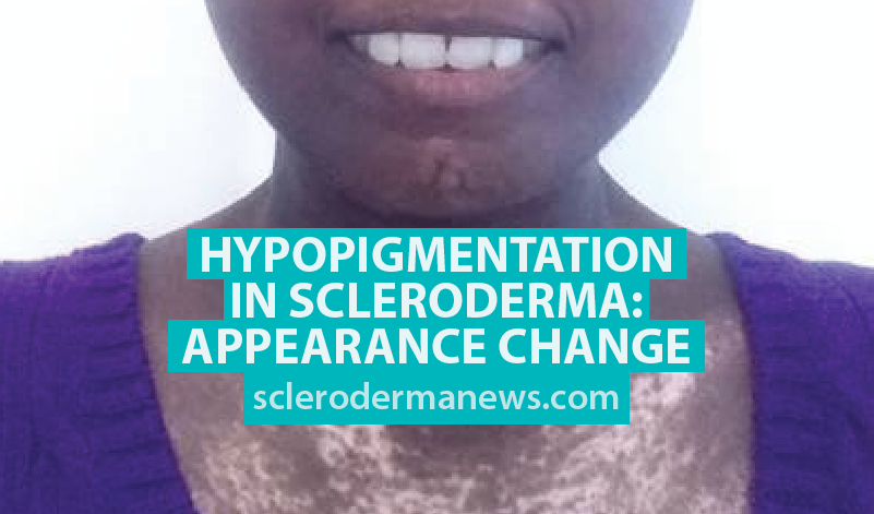 Hypopigmentation in Scleroderma: Appearance Change