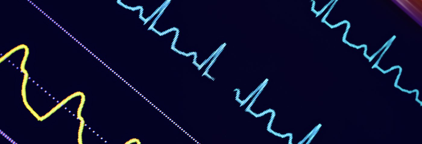 #EULAR2016 – Scleroderma Heart Disease Deaths Might Be Prevented with Heart Monitor