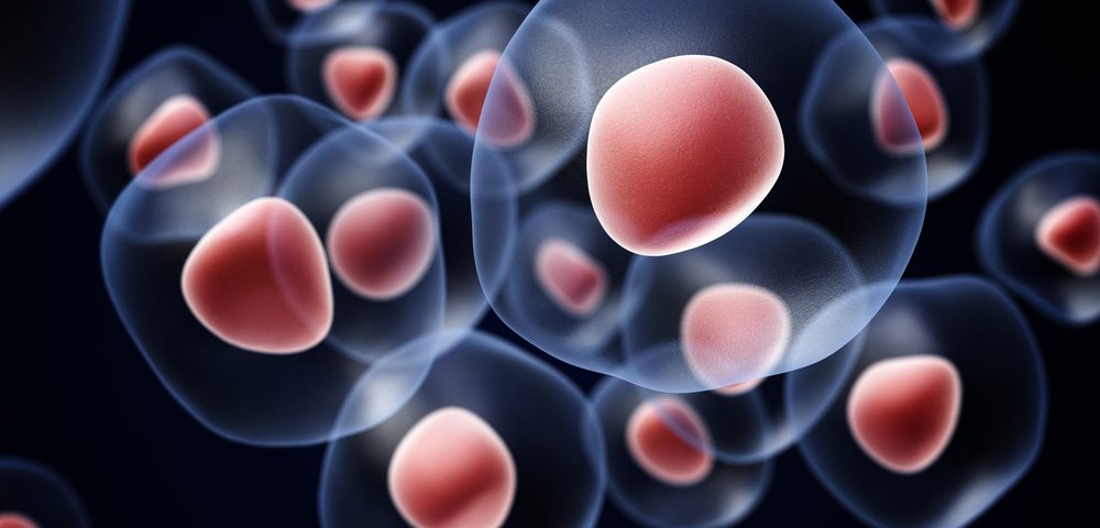 Immunosupression Combined with Stem Cell Therapy Could Improve Some Scleroderma Patients