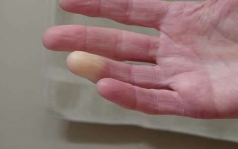New Pre-Scleroderma Classification May Help Manage Disease, Predict Outcomes