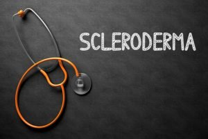 life with scleroderma