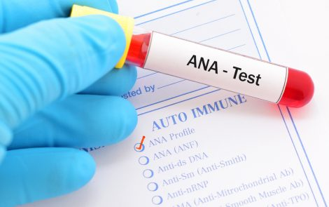Scleroderma Autoantibodies Might Reveal More About Disease Profiles Than Current Classification