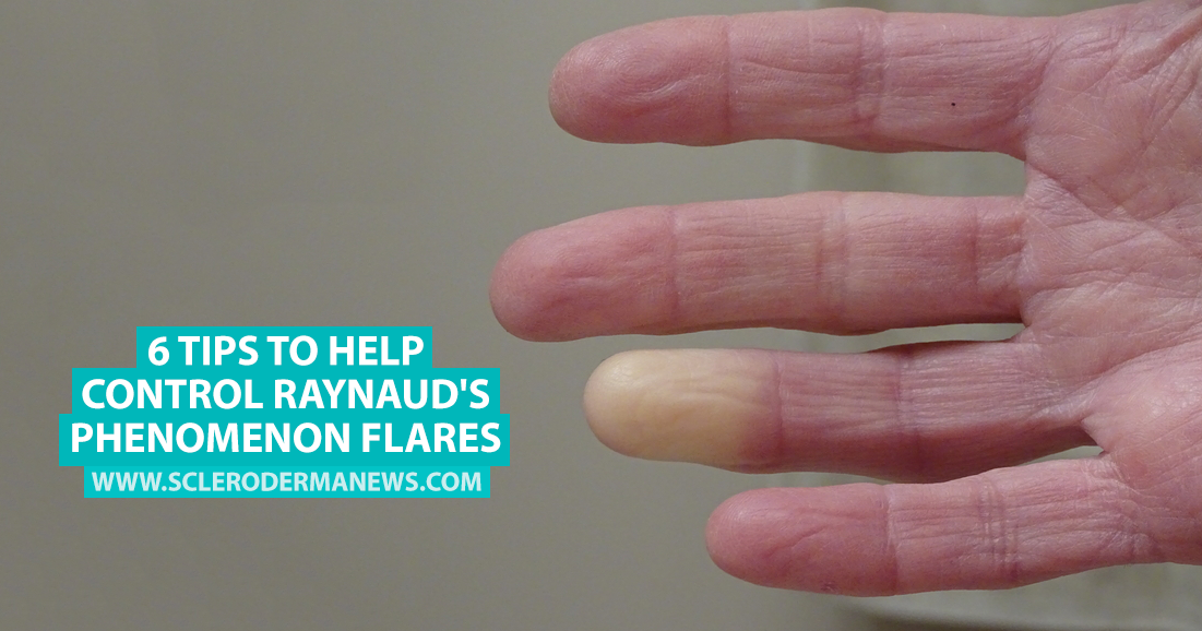 raynaud s phenomenon Raynaud's phenomenon (also called raynaud's disease or raynaud's syndrome) is a disorder that affects the blood vessels in the fingers and toes blood vessels in the nose, lips or ear lobes may also be affected.